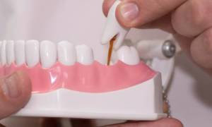 Как правильно называется частичный зубной протез