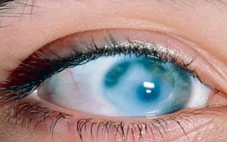 Болезнь сетчатки глаза правильно называется как