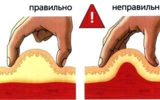 Внутримышечные инъекции как правильно делать